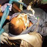 Thể thao - Võ sỹ thập tử nhất sinh sau vụ xả súng