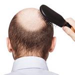 Làm đẹp - Đối phó với nỗi lo tóc rụng
