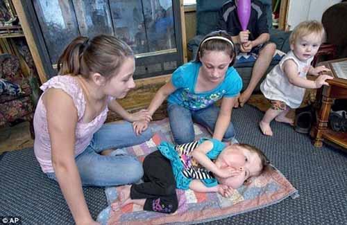 Bé gái 4 tuổi đầu to bất thường - 3