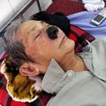 Tin tức trong ngày - Ông già có gần trăm con dòi trong mũi