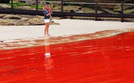 """Đóng cửa biển """"máu"""" ở Sydney - 7"""