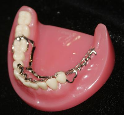Những điều cần biết khi làm răng giả - 2