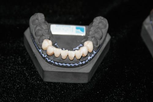 Những điều cần biết khi làm răng giả - 3