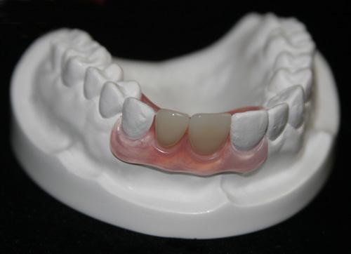 Những điều cần biết khi làm răng giả - 1