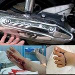 """Sức khỏe đời sống - Kinh hoàng nắp pô xe máy """"xơi tái"""" chân người"""