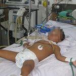 Sức khỏe đời sống - Bé 3 tuổi nguy kịch vì tiêm vắc-xin không đủ liều