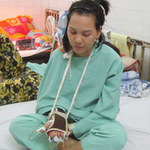 An ninh Xã hội - Nạn nhân bị cướp chém lìa tay xuất viện