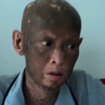 Sức khỏe đời sống - Người mắc bệnh lạ, sụt 40kg, lột da đã khỏe lại