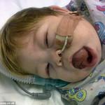 Sức khỏe đời sống - Ngạc nhiên bé gái có lưỡi to gấp 3 lần bình thường