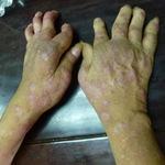 Sức khỏe đời sống - Trời lạnh, bệnh da liễu tăng cao