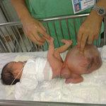 Sức khỏe đời sống - Bé trai chào đời với khối u quái to hơn cơ thể