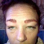 Sức khỏe đời sống - Suýt mù mắt vì thuốc nhuộm lông mày