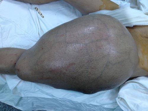 Mang u quái 12,5 kg trên đùi suốt nhiều năm - 1