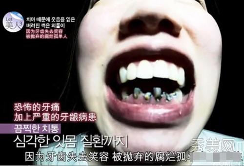 Hô biến răng vẩu, mắt hí nhờ dao kéo - 2