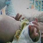Tin tức trong ngày - TQ: Kỳ lạ bé trai 2 tuổi mang thai… em ruột