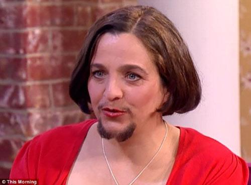 Kỳ lạ người phụ nữ mọc râu sau khi sinh con - 4