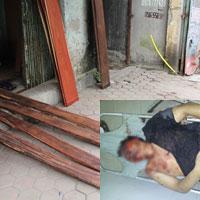 Trộm gỗ, bị dân vây đánh tới biến dạng cơ thể