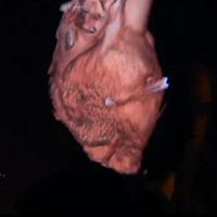 Mỹ: Bị đinh bắn vào tim vẫn sống