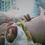 Phi thường - kỳ quặc - Bé trai 2 tuổi mang thai và đẻ em ruột