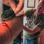 Phi thường - kỳ quặc - 100 lần cho rắn độc cắn