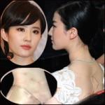 """Thời trang - Lưu Diệc Phi bị báo chí """"soi""""... mụn ghẻ"""