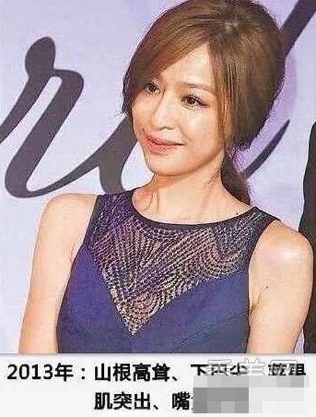 Vương Tâm Lăng xinh đẹp nhờ dao kéo! - 6