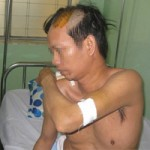 An ninh Xã hội - Vô cớ bị giang hồ Sài Gòn truy sát giữa đường