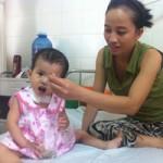 Sức khỏe đời sống - Thay thực quản bằng đại tràng cho bé 19 tháng tuổi