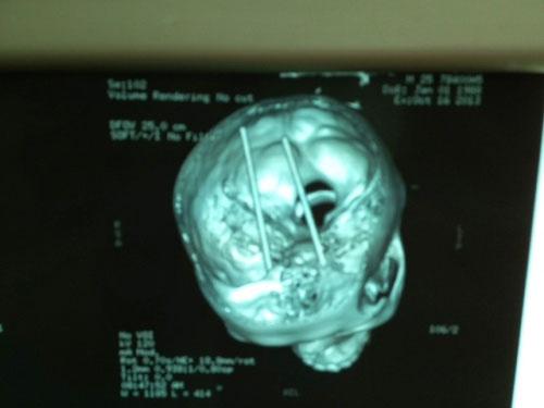 Nam thanh niên bị đôi đũa đâm xuyên não - 1
