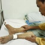 Sức khỏe đời sống - Kinh hoàng mắc bệnh là phải tháo khớp