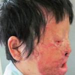 Sức khỏe đời sống - Lột da bằng axit, khuôn mặt bị phá hủy