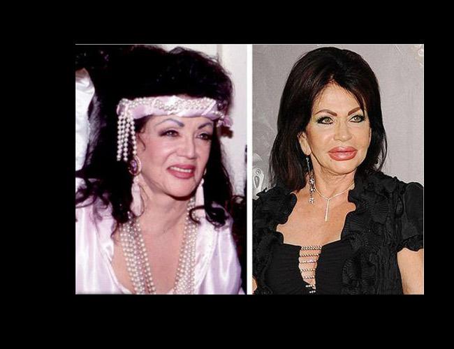 Nữ diễn viên xinh đẹp mặt, môi cứng đỡ và mũi lệch lạc.