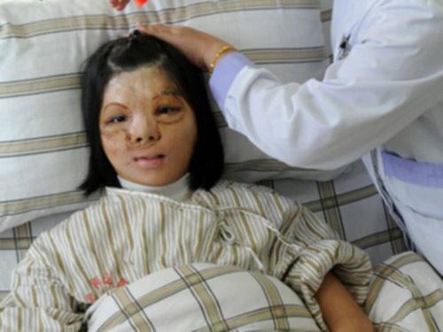 Ghép khuôn mặt được nuôi trên ngực thiếu nữ - 1