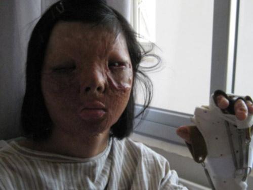 Ghép khuôn mặt được nuôi trên ngực thiếu nữ - 3