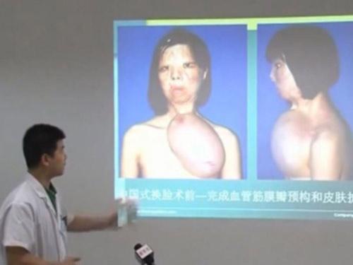 Ghép khuôn mặt được nuôi trên ngực thiếu nữ - 4