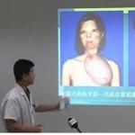 Tin tức trong ngày - Trung Quốc: Cô gái nuôi khuôn mặt ở trên ngực