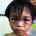 Tin tức trong ngày - Bé trai 3 tuổi bị cậu ruột tra tấn dã man