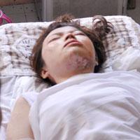 Vụ tạt a xít 8 người: Cố giữ mắt cho nạn nhân