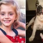 Sức khỏe đời sống - Bé gái 4 tuổi bị chó bull cắn xé đến chết