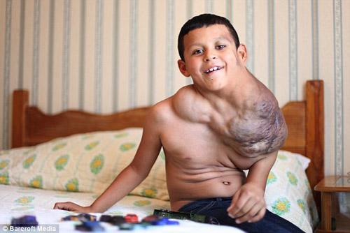 Bé trai 10 tuổi trị u cổ bằng Viagra - 3