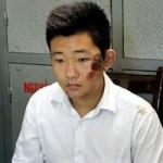 Tin tức trong ngày - Bác sĩ ném xác: Đưa bảo vệ Khánh ra hiện trường