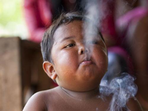 Indonesia: Bé trai nghiện ăn sau cai thuốc lá - 1