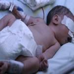 Sức khỏe đời sống - Bé sơ sinh sống lại sau 10 giờ nằm nhà xác