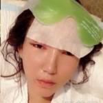 Làm đẹp - Mẫu Trung Quốc tung ảnh dao kéo gây sốt