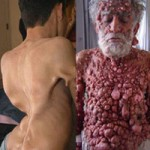 Phi thường - kỳ quặc - 14 căn bệnh kỳ lạ nhất trên thế giới