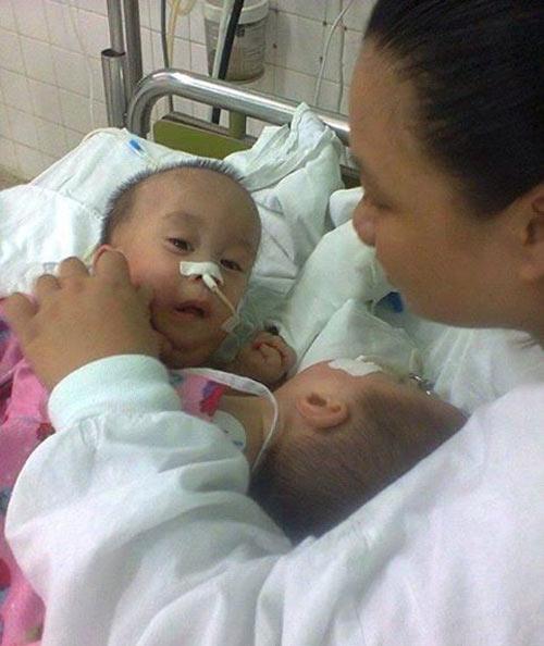 2 bé dính tim: Sinh con 11 tháng, bế con được 1 giờ - 1