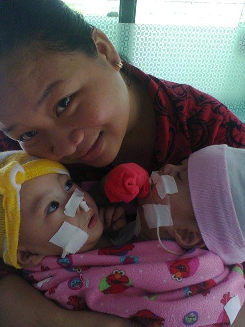 2 bé dính tim: Sinh con 11 tháng, bế con được 1 giờ - 3