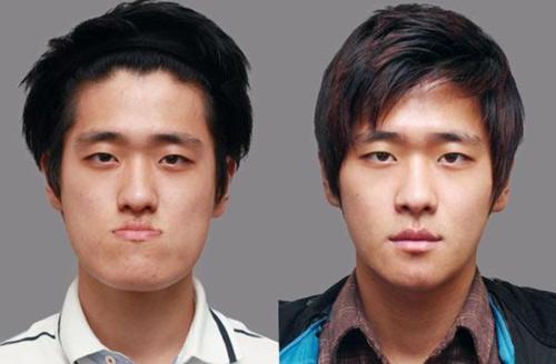 Sững sờ với công nghệ dao kéo ở Hàn Quốc - 10