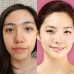 Làm đẹp - Sững sờ với công nghệ dao kéo ở Hàn Quốc