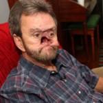 Sức khỏe đời sống - Người đàn ông không còn mũi vì bệnh lạ